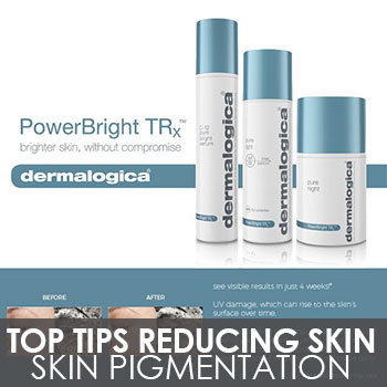 Top Tips For Reducing Skin Pigmentation